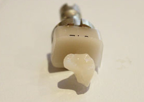 Cut into tooth with CEREC