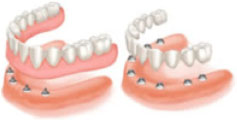 All Missing Teeth