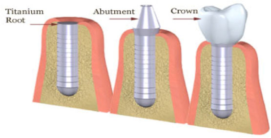 Surgical Implants Process